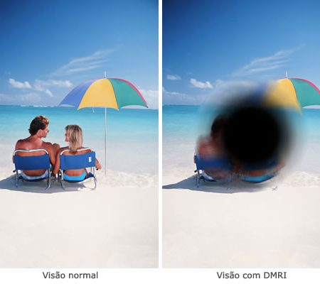 Injeções Intra-Vitreas de Antivegf (Lucentis e Eyelea)